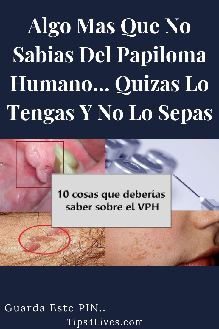 que significa papiloma en medicina which helminth infection can be diagnosed using clear tape
