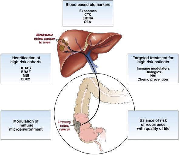 rectal cancer with liver metastasis