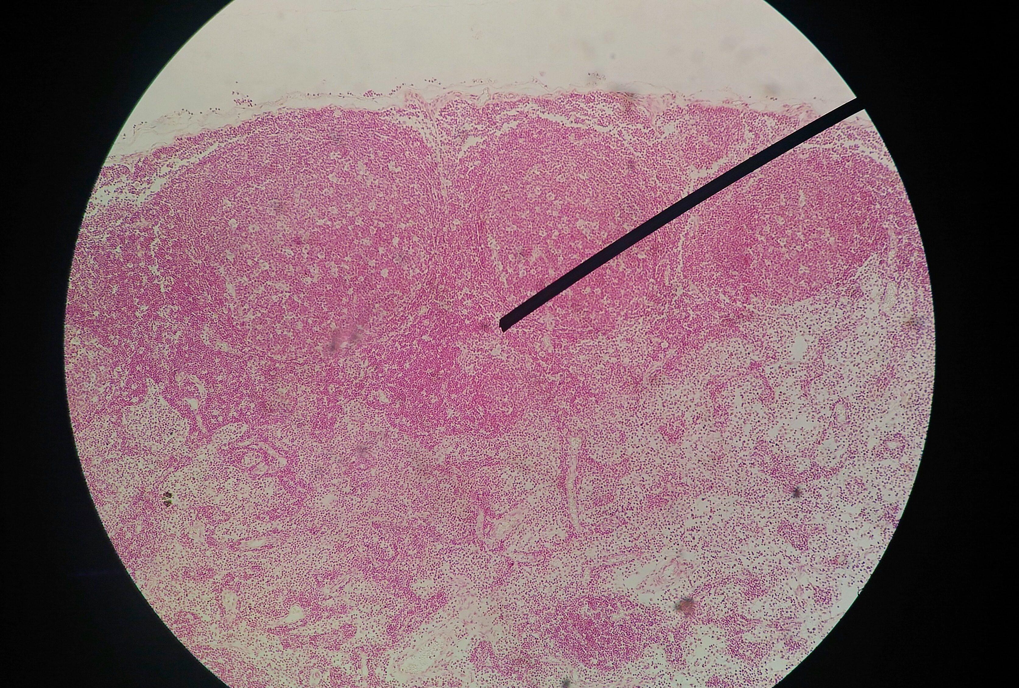 ricerca anticorpi papilloma virus