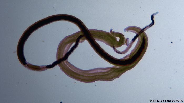 schistosomiasis malawi lake parazitii noul album
