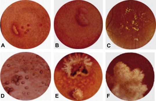 papilloma virus kanker