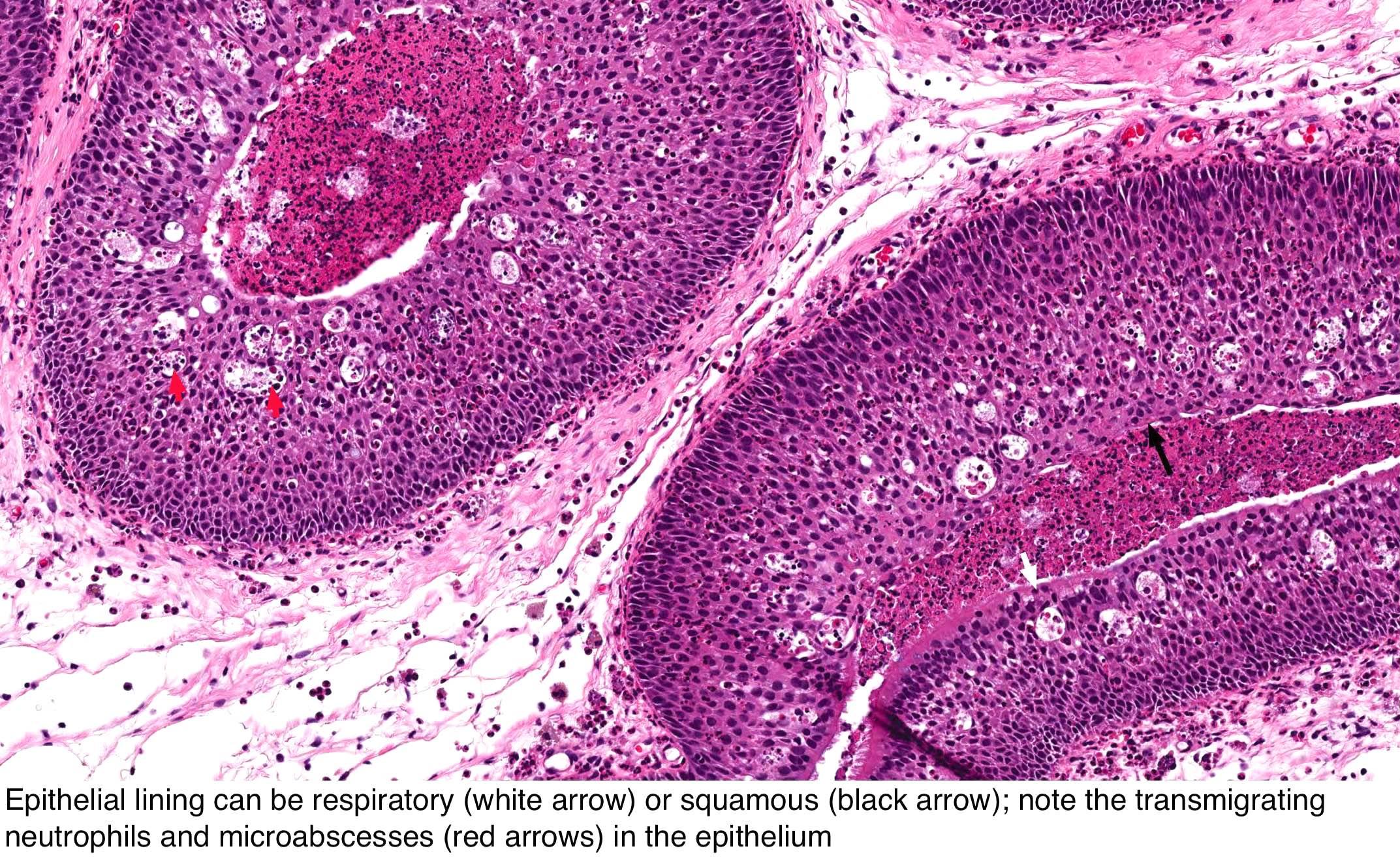 schneiderian papilloma fungiform type virus papiloma humano ppt