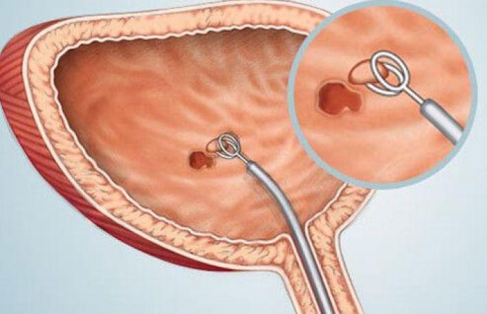 hpv and neck cancer symptoms zentel pastile prospect