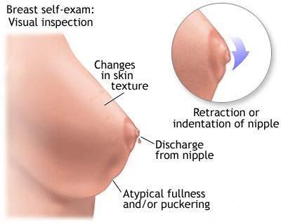 simptome la cancerul de san