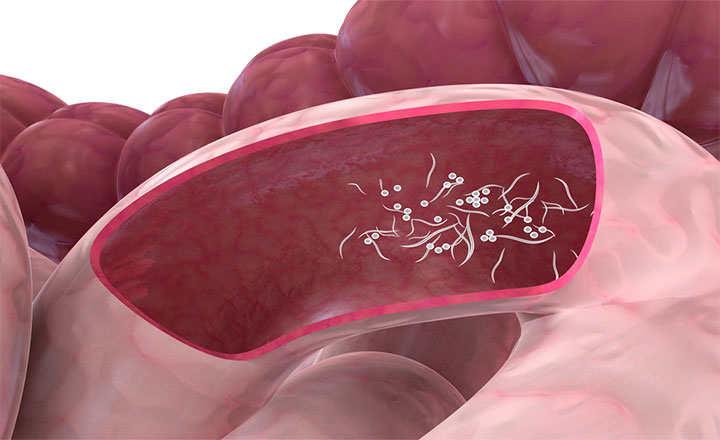 sintomas que producen los oxiuros vaccino uomo papilloma virus