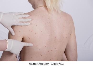 cancerul de san se mosteneste cancer de orofaringe sintomas