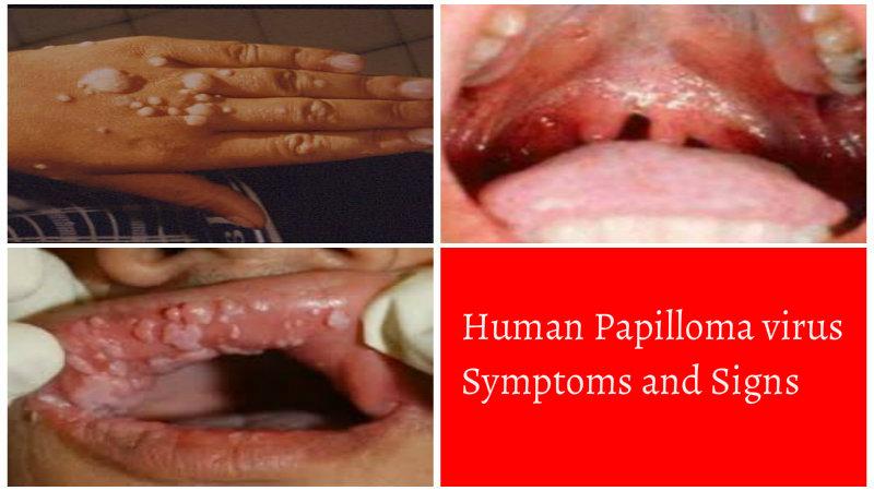 eliminare viermi intestinali hpv and gallbladder