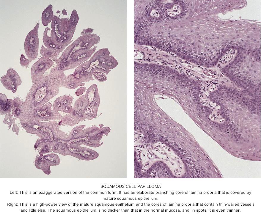 squamous papilloma of tongue pathology
