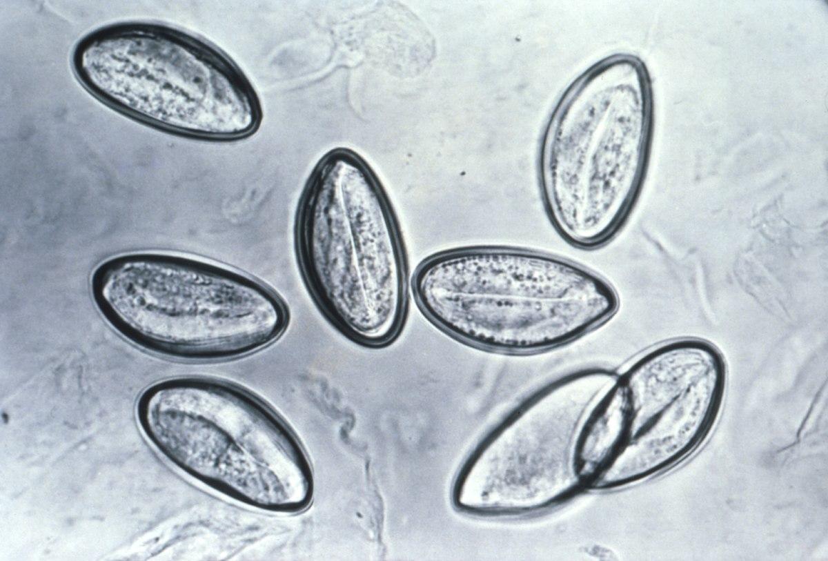 tamano de un oxiuros papillary urothelial carcinoma of the bladder