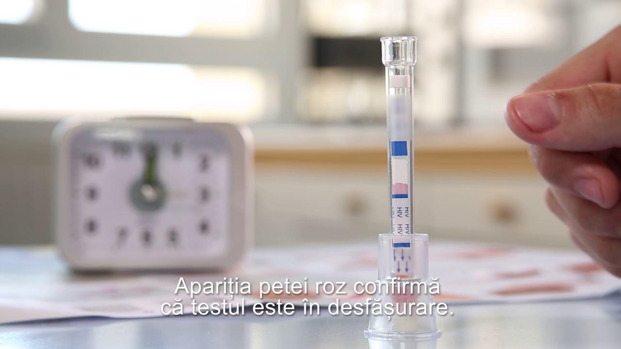 test hiv anonim bucuresti giardia paraziti nedir