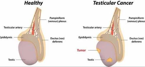 Operație pentru testicular varicoase