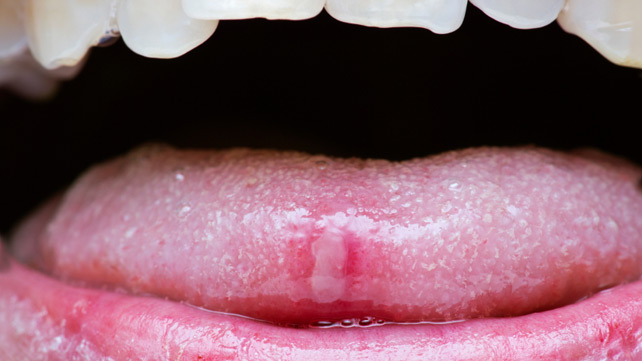 tongue papillae pain