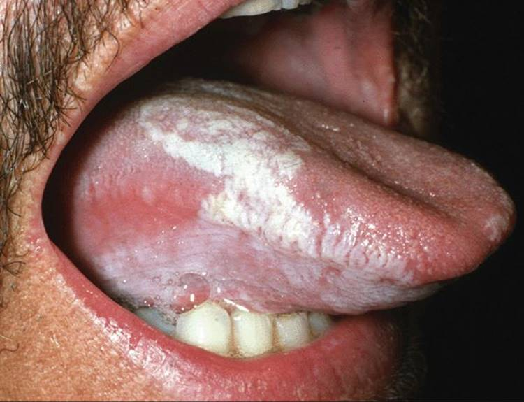 tongue papilloma icd 10