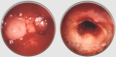 papillomavirus laser douloureux