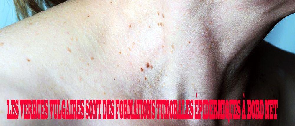 traitement masculin papillomavirus
