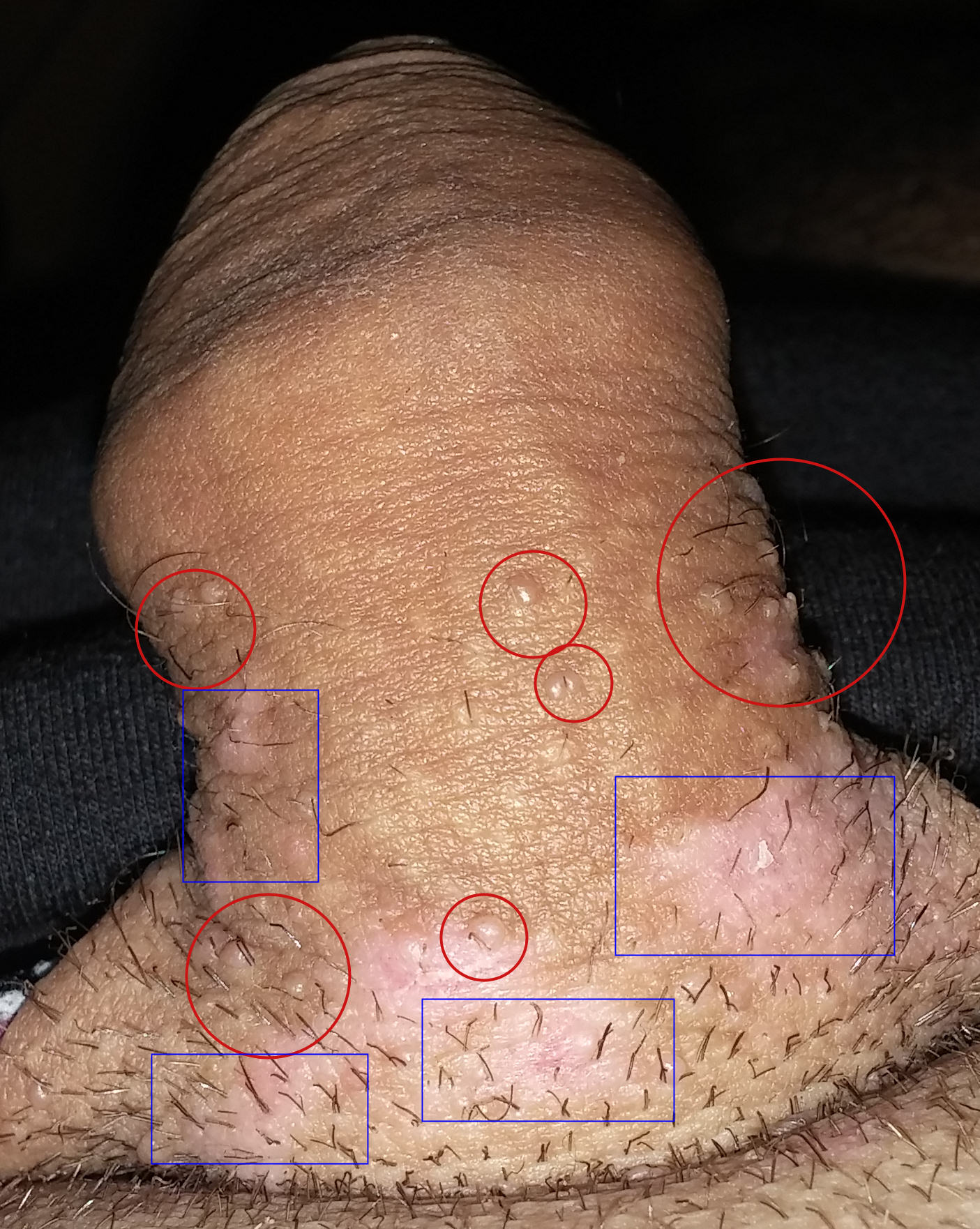 traitement pour le papillomavirus chez lhomme