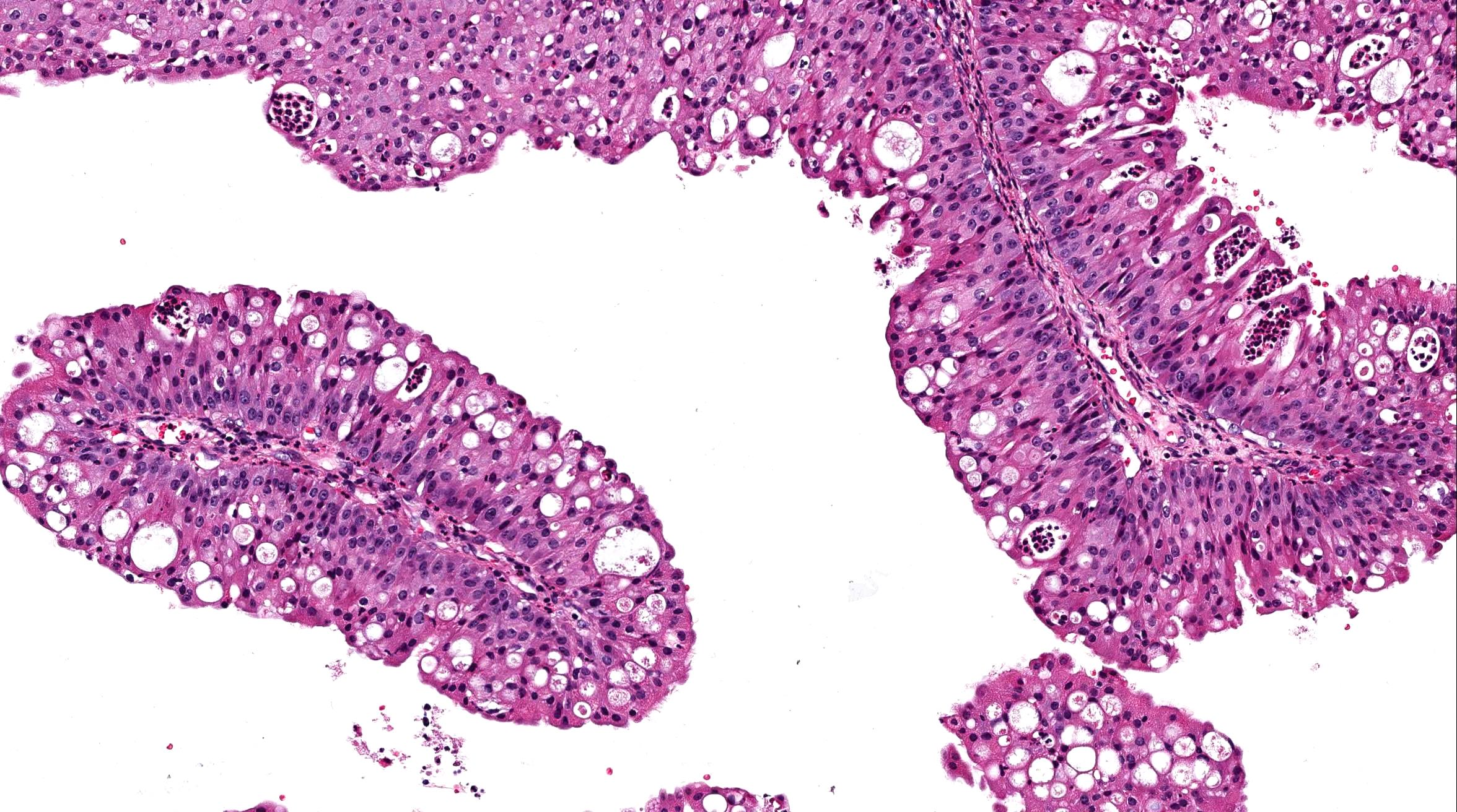 transitional cell papilloma nose aggressive cancer growth