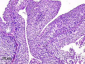 transitional papilloma means