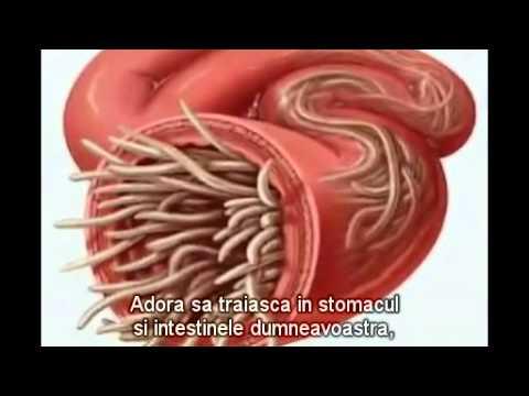 oxiuri ch 30 medicament impotriva viermilor intestinali