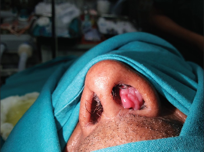 treatment for inverted nasal papilloma