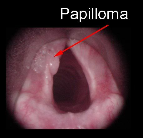 treatment for laryngeal papilloma chicken papilloma disease