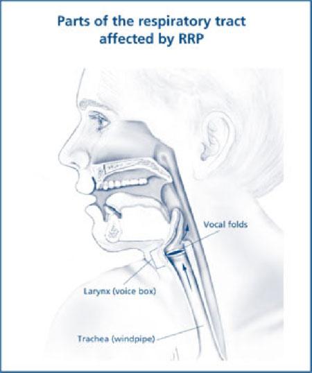 cancerul gurii simptome infectie cu helminti