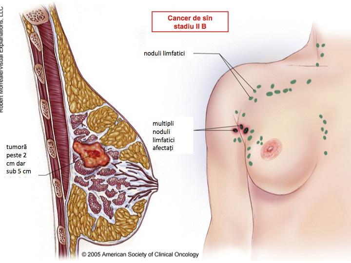 unde apare cancerul la san