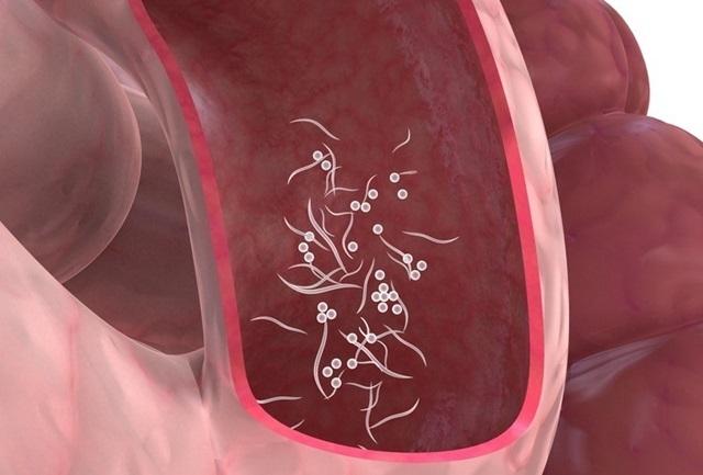 vermes oxiuros sintomas
