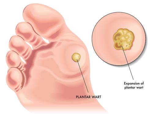 papilloma removal eyelid cancerul pulmonar cu metastaze