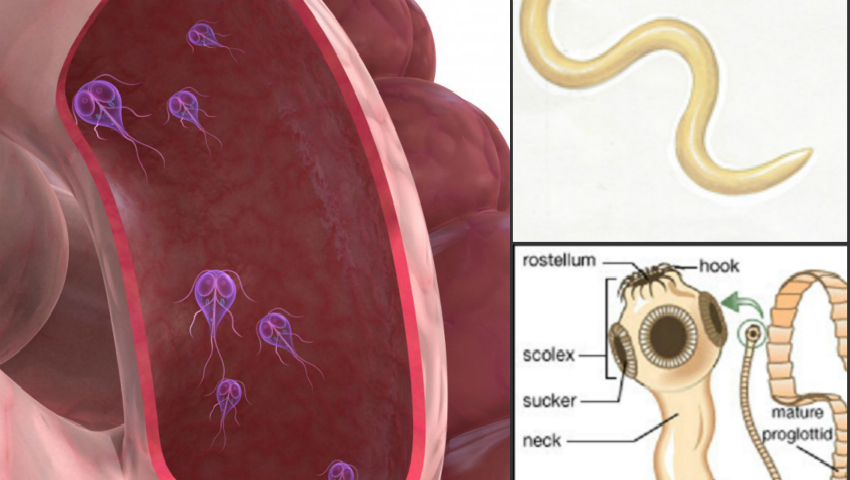 viermisori copii simptome cancer plamani tuse