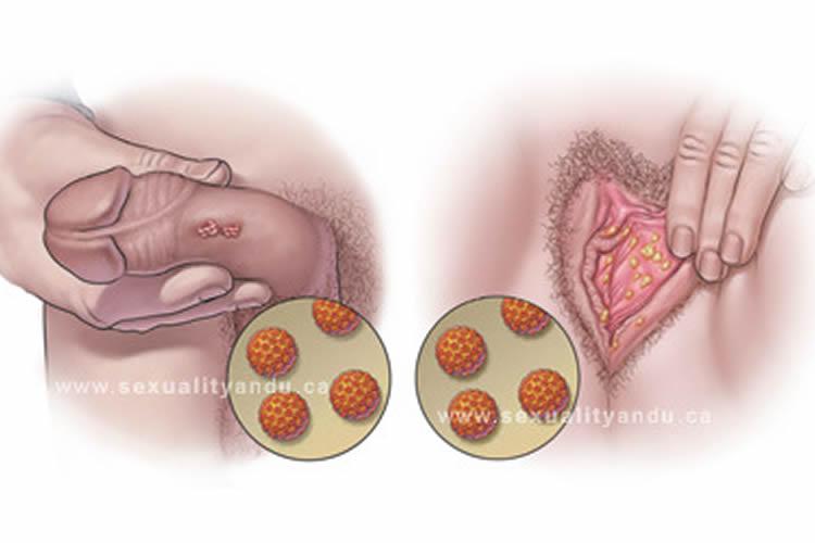 virus del papiloma humano imagenes en hombres y mujeres