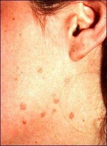 virus del papiloma humano verrugas planas