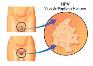 virus del papiloma humano y verrugas genitales analize de sange pentru paraziti intestinali