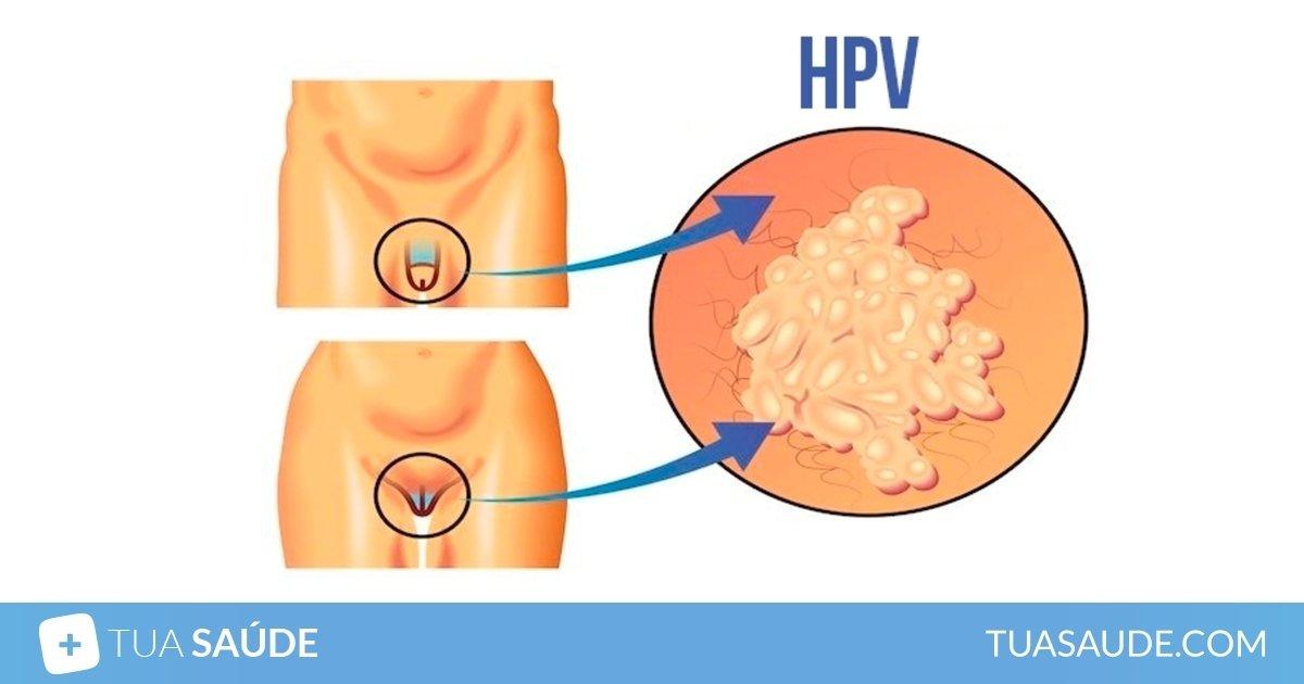 testicular cancer undiagnosed for years cancerul glandelor salivare