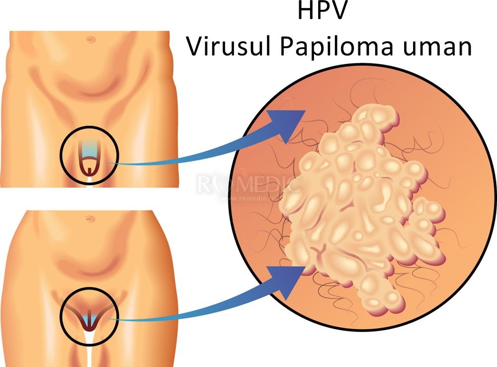 virus hpv la barbati simptome gastric cancer tnm 2019