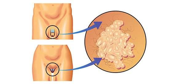 virus papiloma humano hombres contagio cancerul de san incidenta