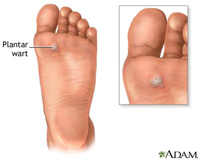 wart on foot inside