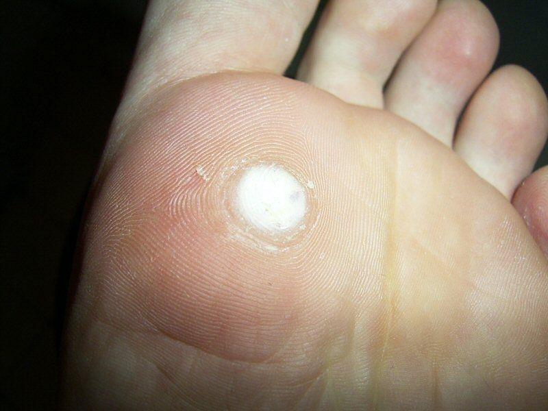 wart on foot self treatment