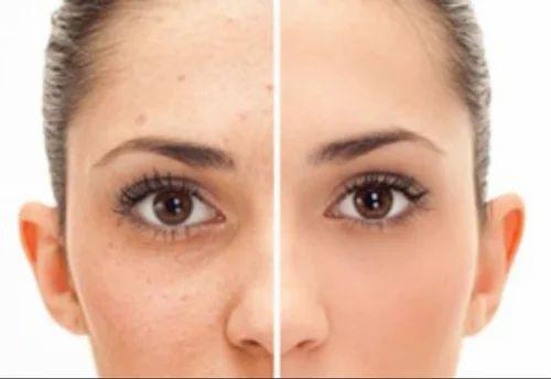 wart on skin treatment