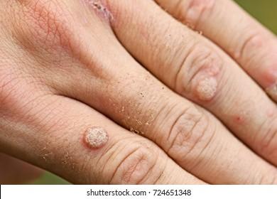 wart virus hands papillomavirus voie de transmission