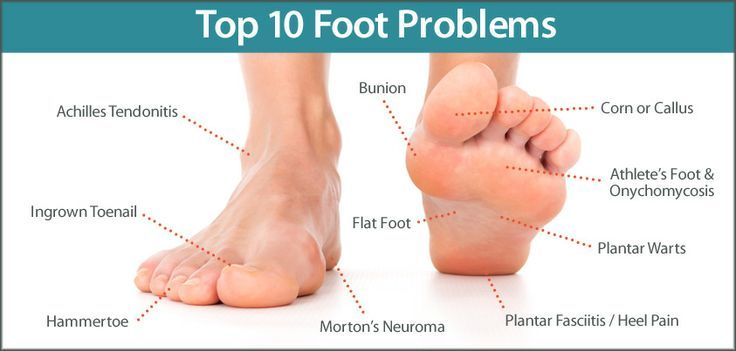 warts foot nails cancer rectal jeune