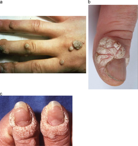 warts on hands all of a sudden il papilloma virus fa dimagrire