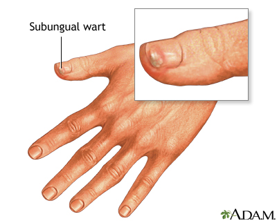 warts on hands caused by papilloma treatment skin