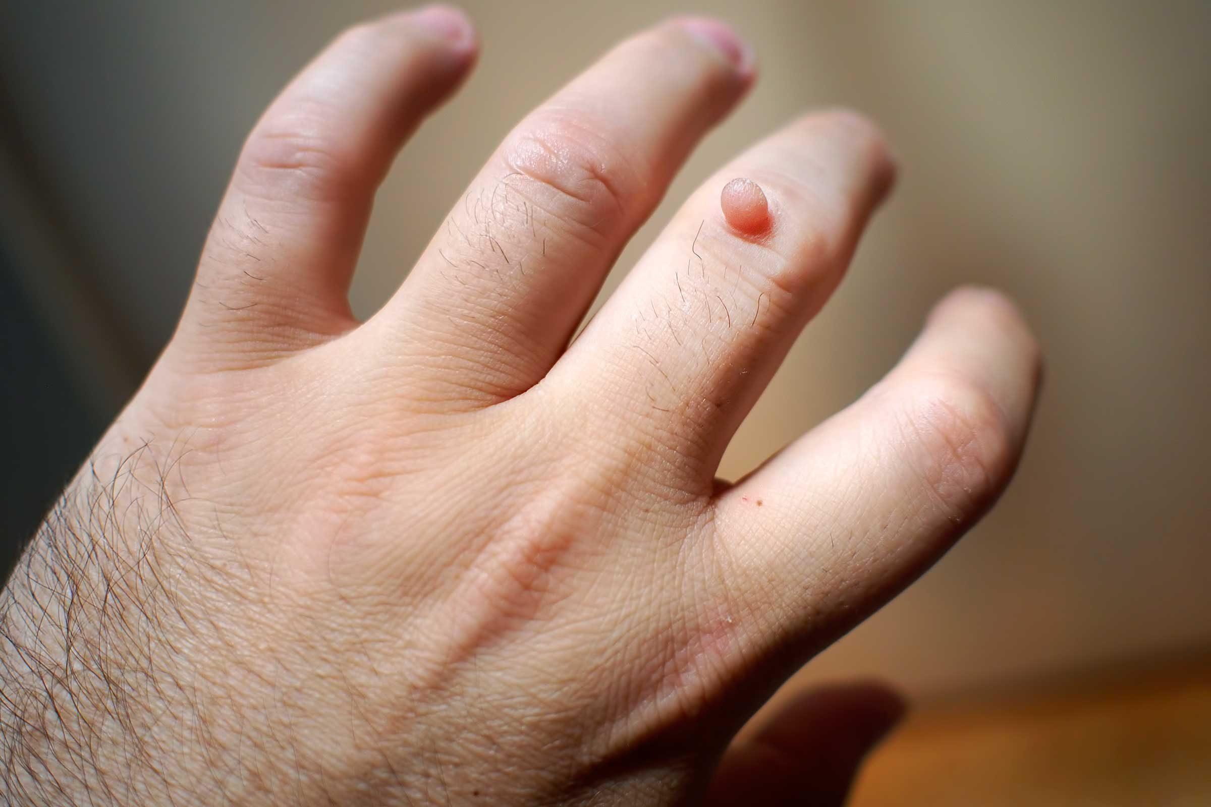warts on hands removal cauzele cancerului de col