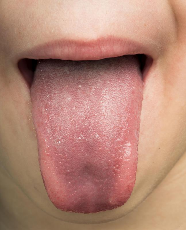 what causes papilloma on the tongue centru detoxifiere sibiu