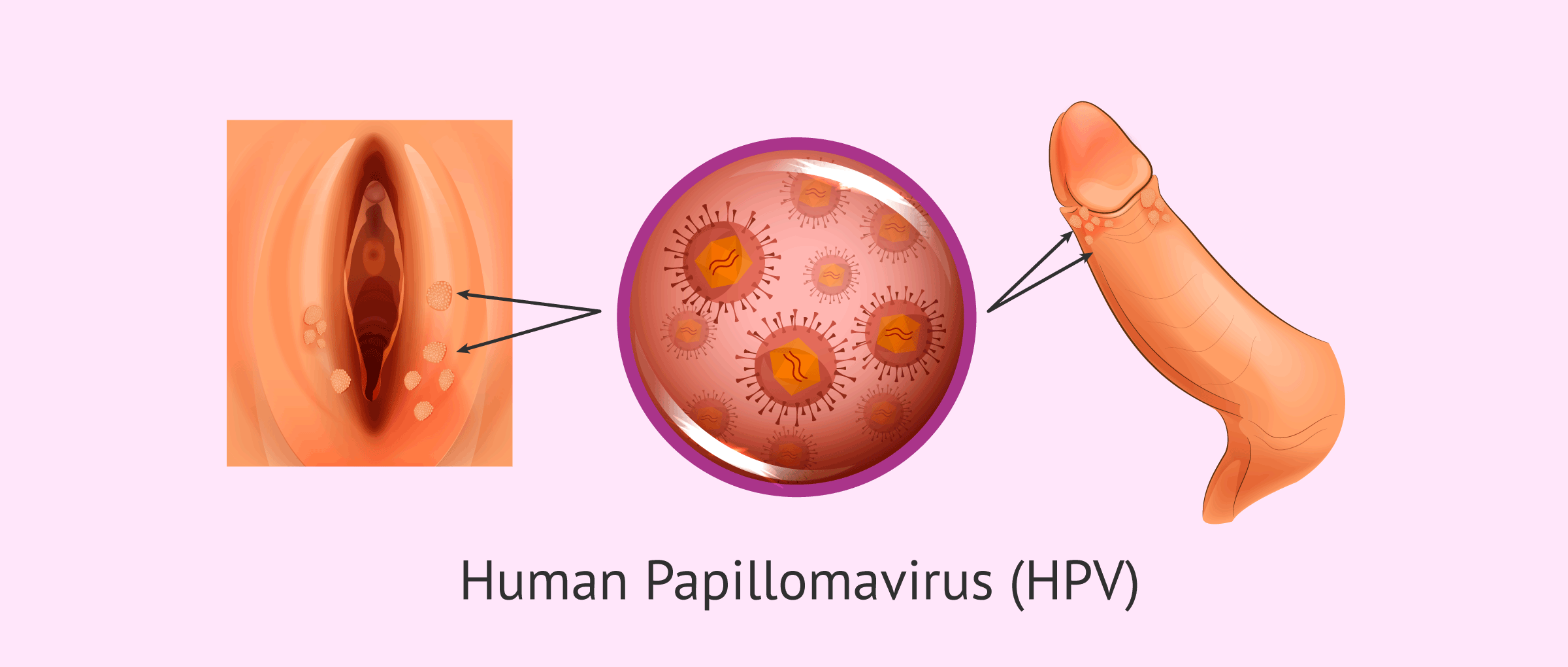 hpv virus traitement