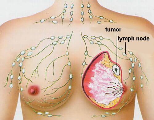 cancer mamar primele simptome hpv impfung im erwachsenenalter