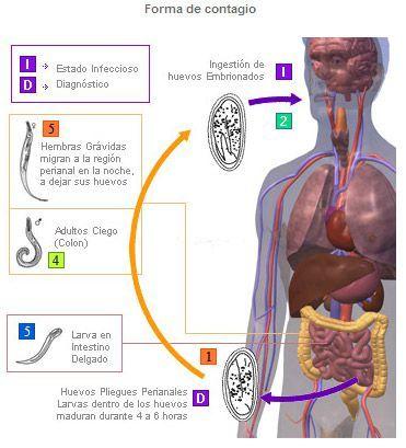 oxiuros inflamacion metode de tratare a viermilor la om
