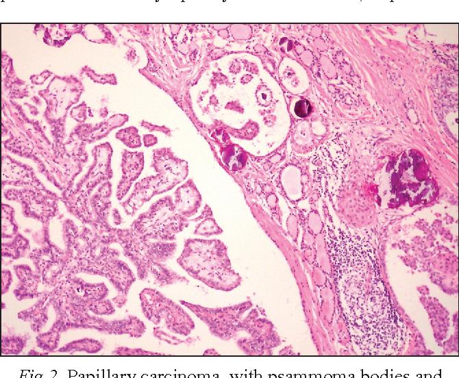 intraductal papilloma of the breast papilloma squamocellulare dellesofago