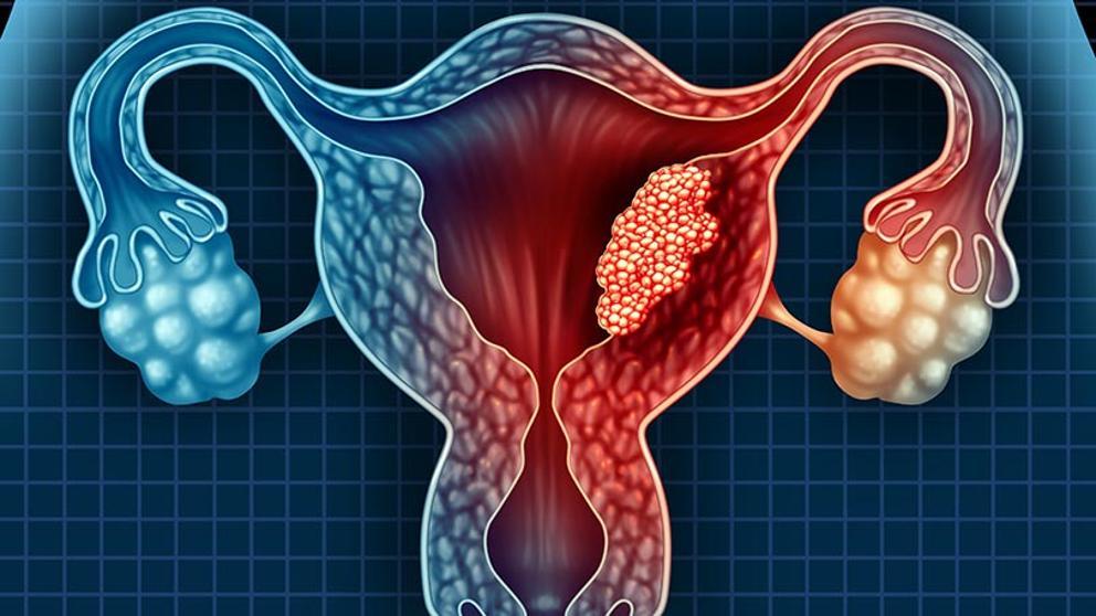 cancerul de colon alimentatie cancerul mamar stadii